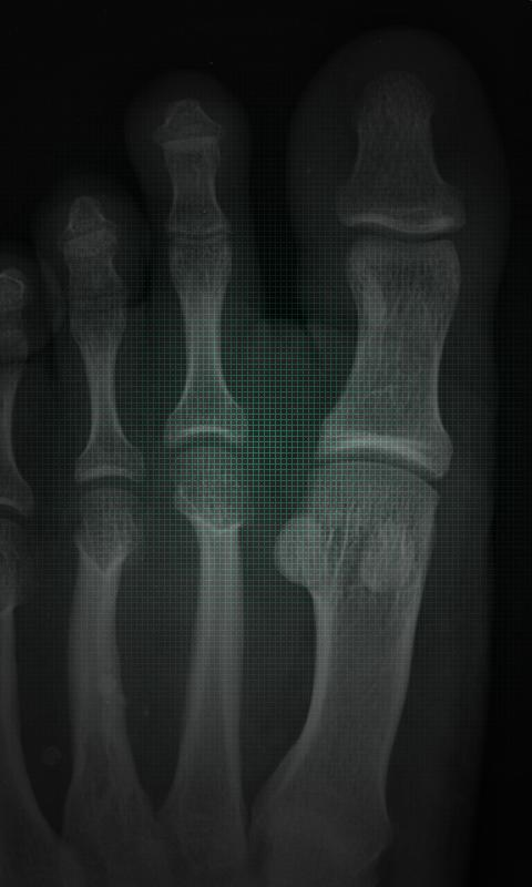 X-Ray Scanner Free - screenshot