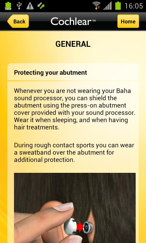 Cochlear Baha Support - screenshot