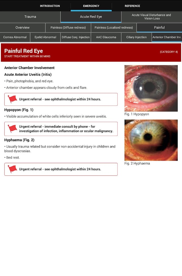Eye Emergency Manual- screenshot