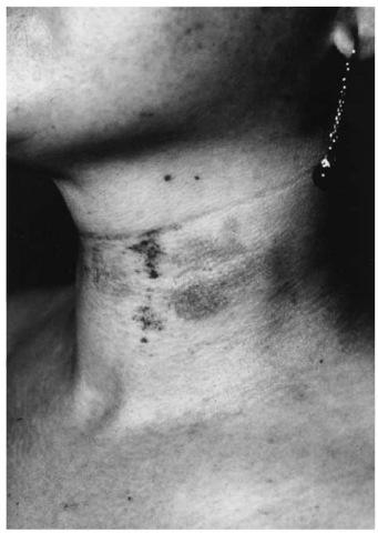 Manual strangulation symptoms.