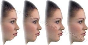 Cheek and Chin Enhancement - ELROUBY CLINIC