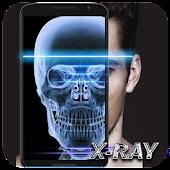 Xray Scanner Prank - Ultimate