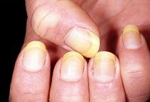 κιτρινισμένα-νύχια