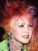 Cyndi Lauper, 1985