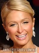 Paris Hilton,