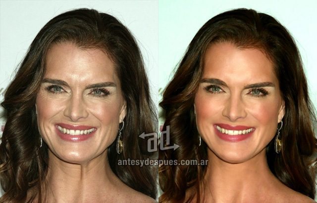 187 20 Celebrities Without Photoshop Before And After