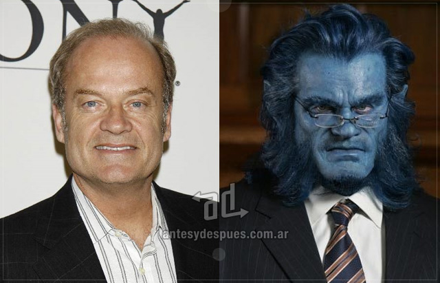 Kelsey Grammer behind the mask