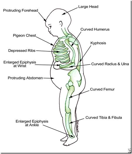 Pathogenesis of bone disorders | Medatrio