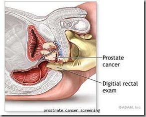 prostrate cancer screening