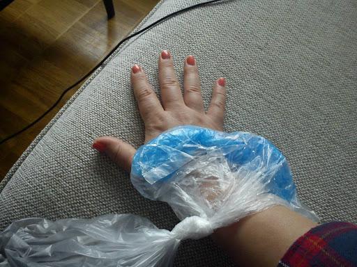 dämpa svullnad finger