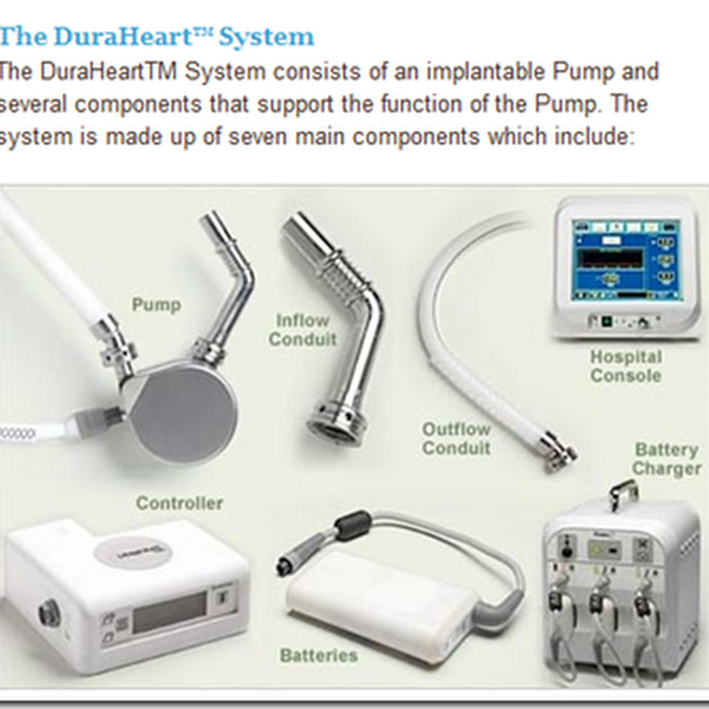 DuraHeart Implantable Pump – Beginning Clinical Trials