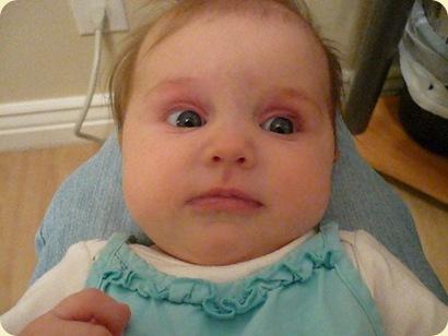 Redness On Eyelids Babycenter