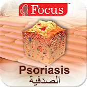 Psoriasis - An Overview