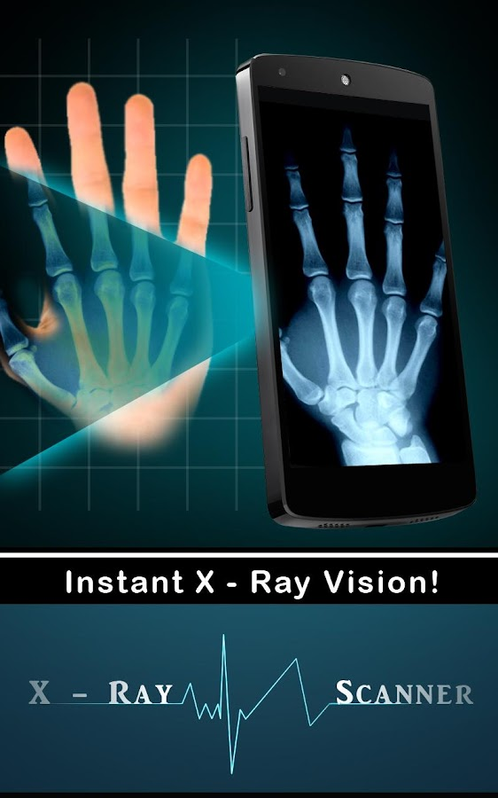 Xray Scanner (Prank) - screenshot