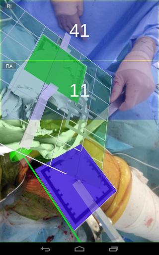 無料医疗AppのAR HIP 人工股関節手術支援|記事Game