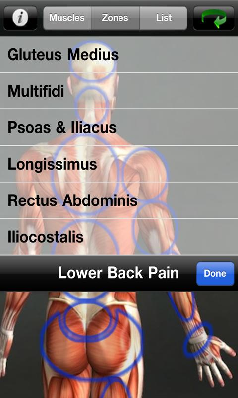 Muscle Trigger Point Anatomy - screenshot