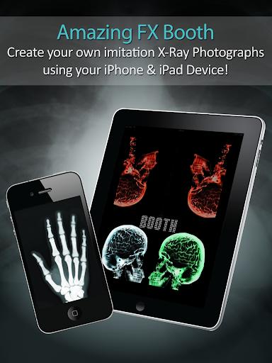 神奇效果——夜视模式红外线 X 光房——