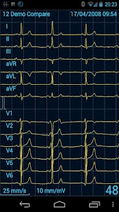 Cardiax Mobile ECG - screenshot thumbnail