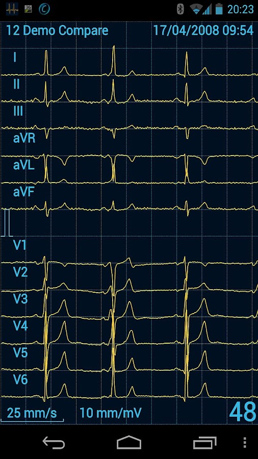 Cardiax Mobile ECG - screenshot