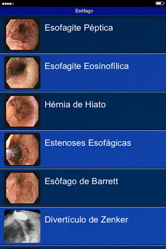 Endoscopia HCFMUSP