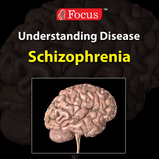 understanding the brain disorder schizophrenia Most people have heard of bipolar disorder or manic depression, but gaining an understanding of the illness and what it means for those affected by it on a daily basis takes effort and education.