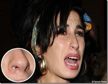 Amy+Winehouse+With+The+Suspicious+White+Powder+In+Her+Nostril%5B3%5D