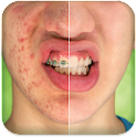 Pimple Remover icon