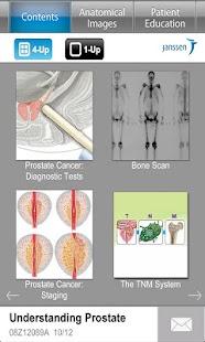 玩免費醫療APP|下載Understanding Prostate Cancer app不用錢|硬是要APP