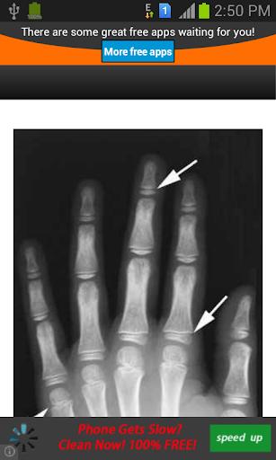 برنامج اظهار عظام اليد