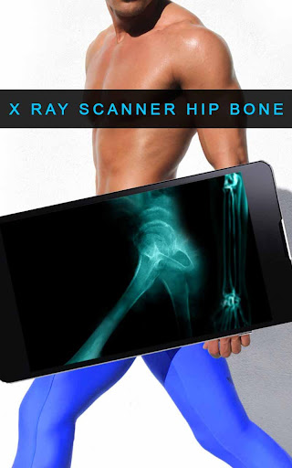 X射线髋关节骨