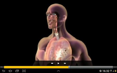 Understanding Diseases screenshot