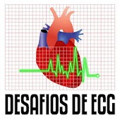 Desafios de ECG Lite