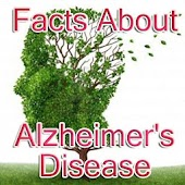 Alzheimer's disease Guide