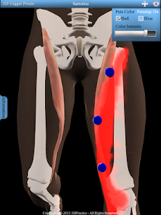 玩醫療App|3D Trigger Points免費|APP試玩