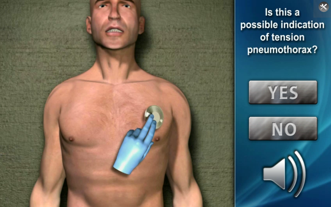 Medrills: NCD for Pneumothorax- screenshot