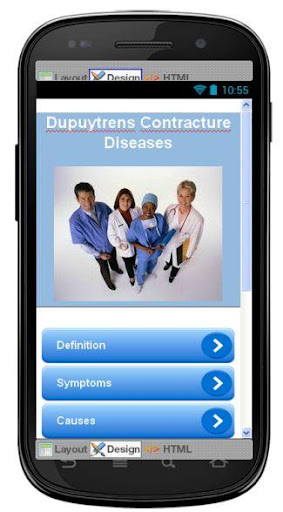 Dupuytrens Contracture Disease