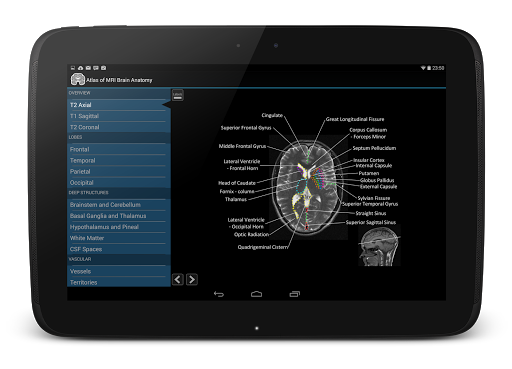 【免費醫療App】Atlas of MRI Brain Anatomy-APP點子