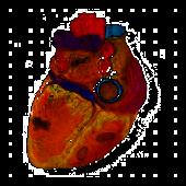 Sonidos Cardiacos
