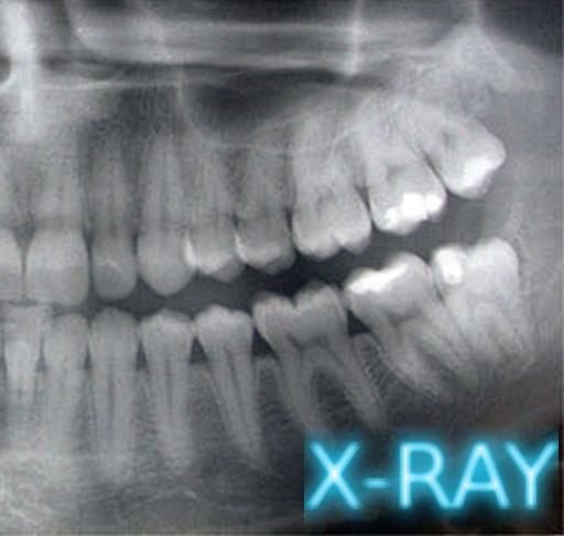 牙科X射線