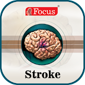 Stroke- An Overview