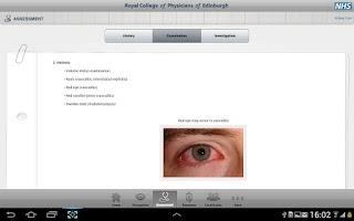 Screenshot of Acute Kidney Injury Tablet App