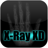 X-Ray Scanner XD