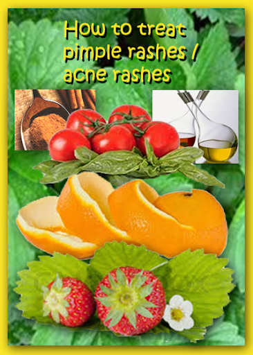 Pimple Acne Rashes Treatment