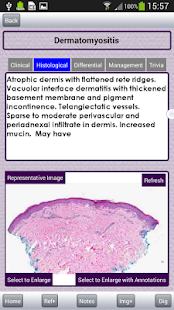 myDermPath- screenshot thumbnail