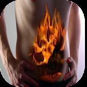 Gastritis Remedios Naturales