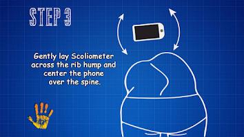 Screenshot of Scoliometer HD