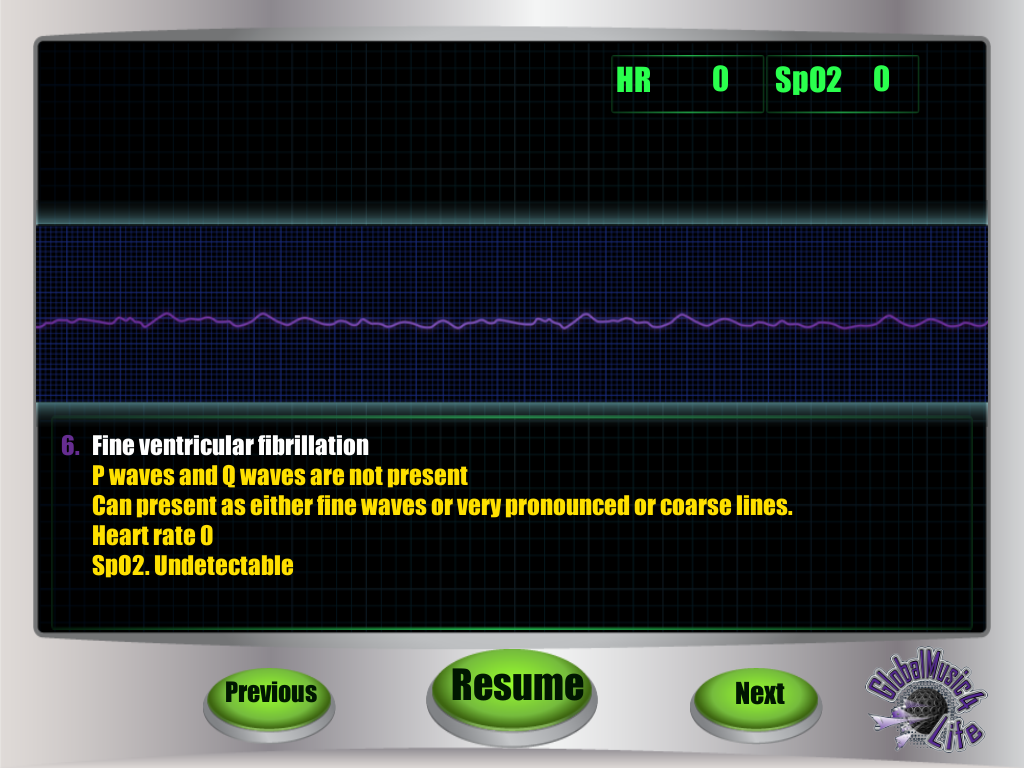 GM4L EKG Game- screenshot
