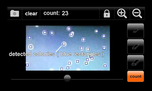 Colony Counter ( automated )- screenshot thumbnail