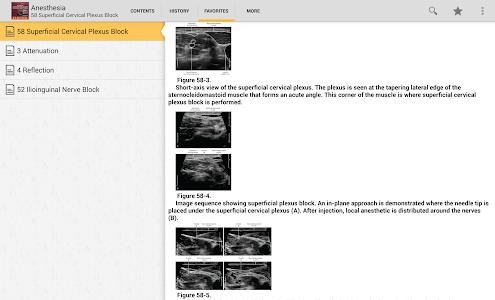 Atlas of Ultrasound Anesthesia v4.3.104