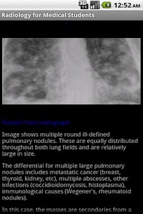 Emergency Radiology Lite - screenshot thumbnail